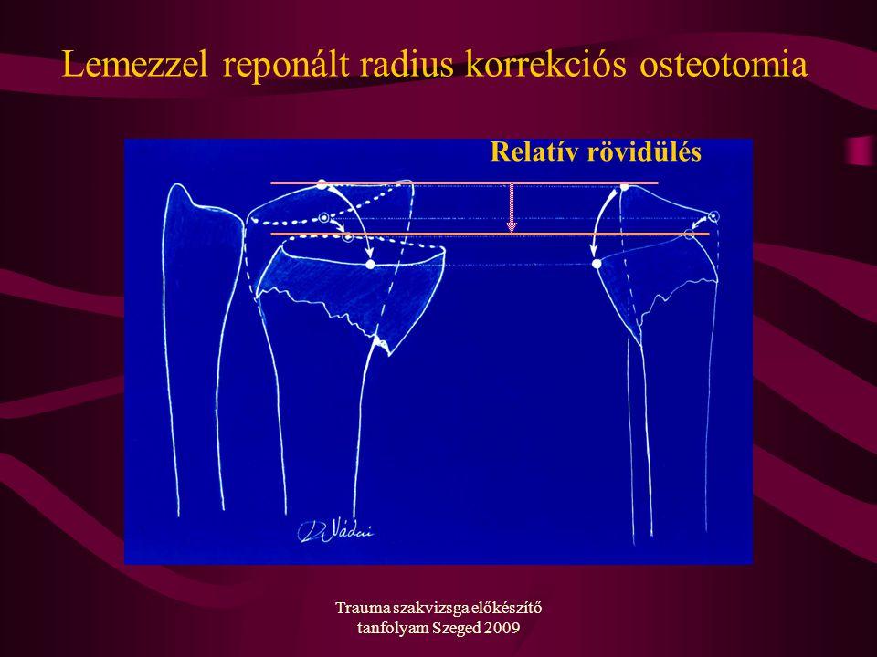 Trauma szakvizsga előkészítő tanfolyam Szeged 2009 Lemezzel reponált radius korrekciós osteotomia Relatív rövidülés