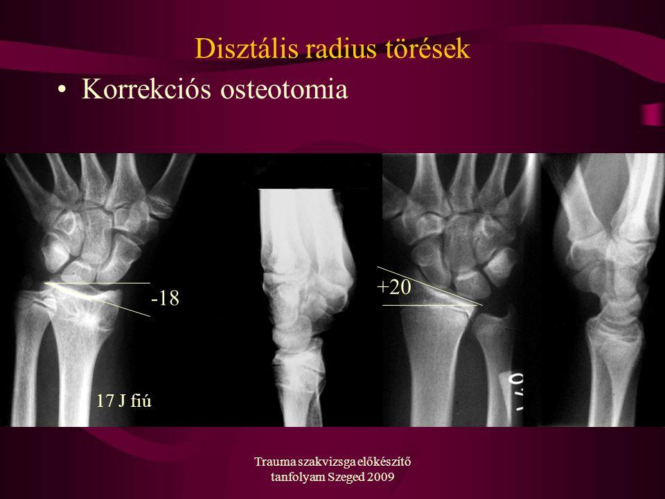 Trauma szakvizsga előkészítő tanfolyam Szeged 2009 Disztális radius törések Korrekciós osteotomia -18 +20 17 J fiú