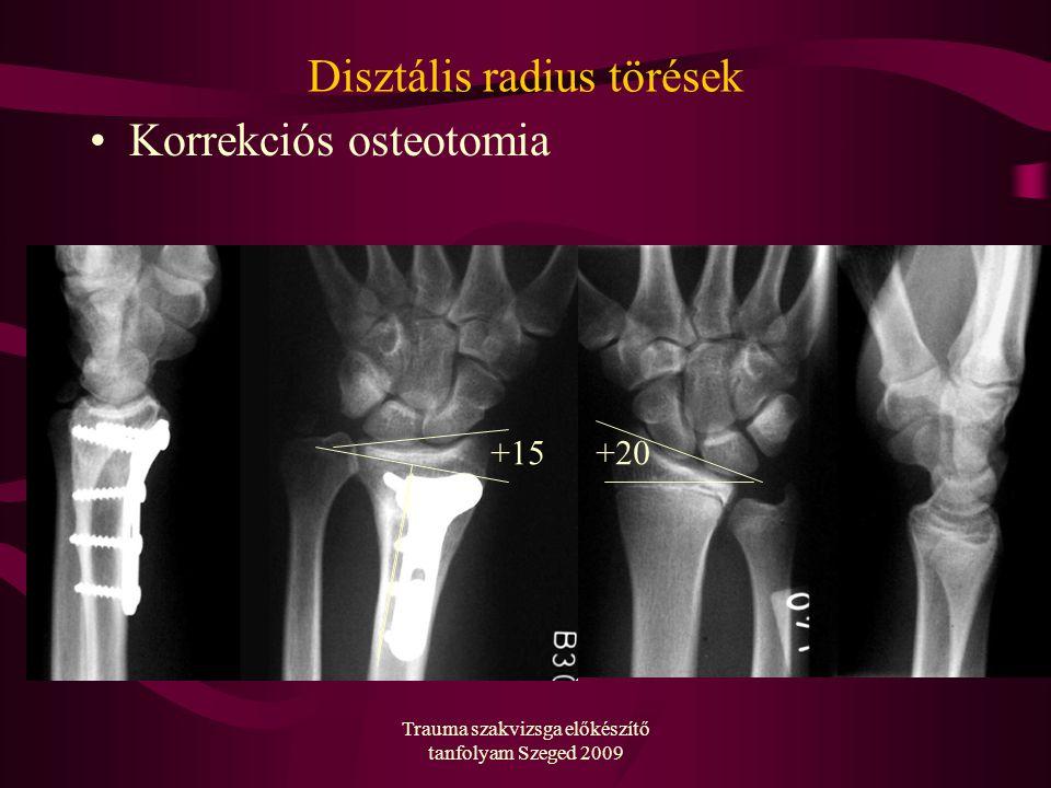 Trauma szakvizsga előkészítő tanfolyam Szeged 2009 Disztális radius törések Korrekciós osteotomia +20+15