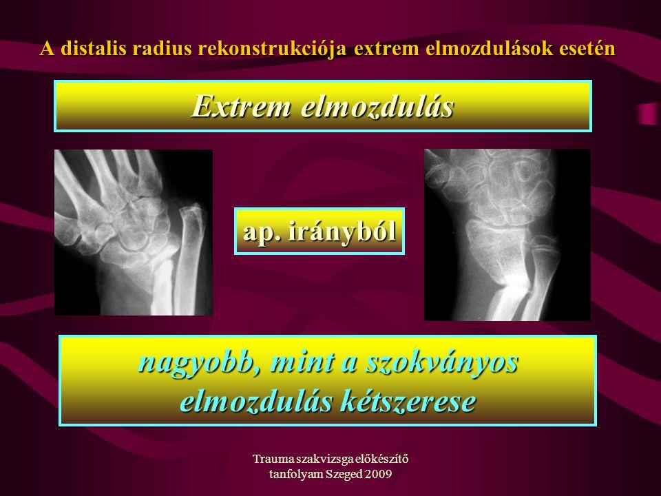 Trauma szakvizsga előkészítő tanfolyam Szeged 2009 A distalis radius rekonstrukciója extrem elmozdulások esetén Extrem elmozdulás ap. irányból nagyobb