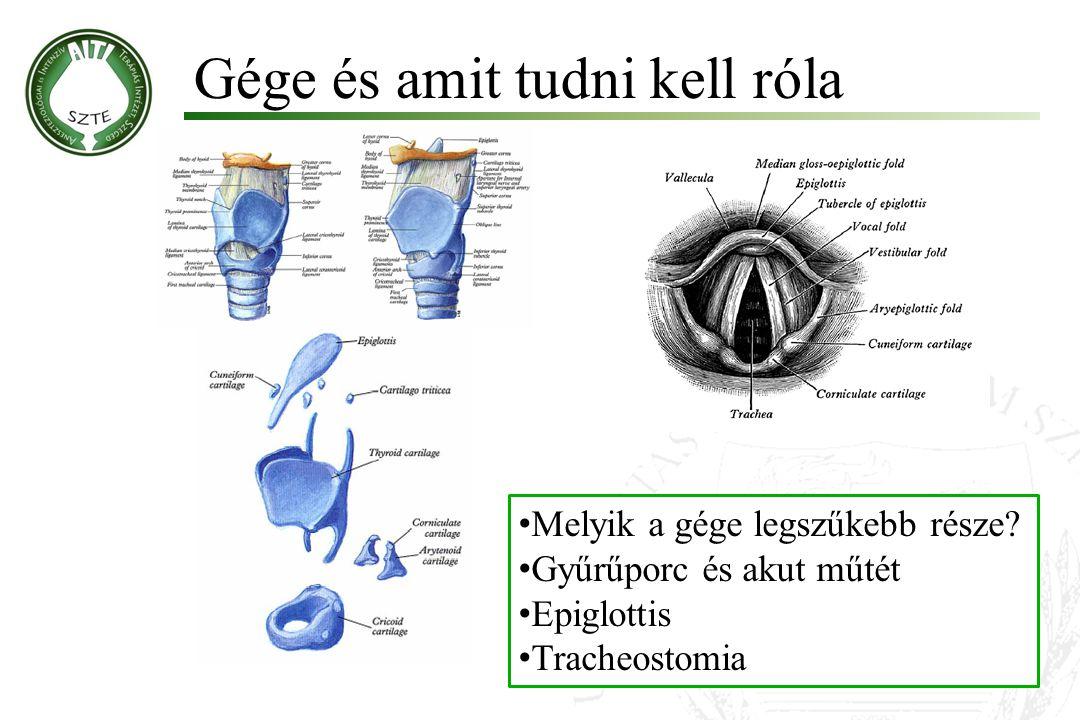 Gége és amit tudni kell róla Melyik a gége legszűkebb része? Gyűrűporc és akut műtét Epiglottis Tracheostomia