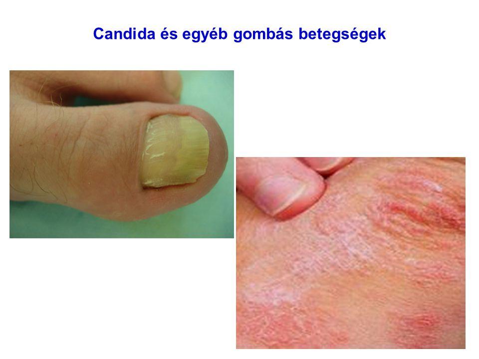 Candida és egyéb gombás betegségek