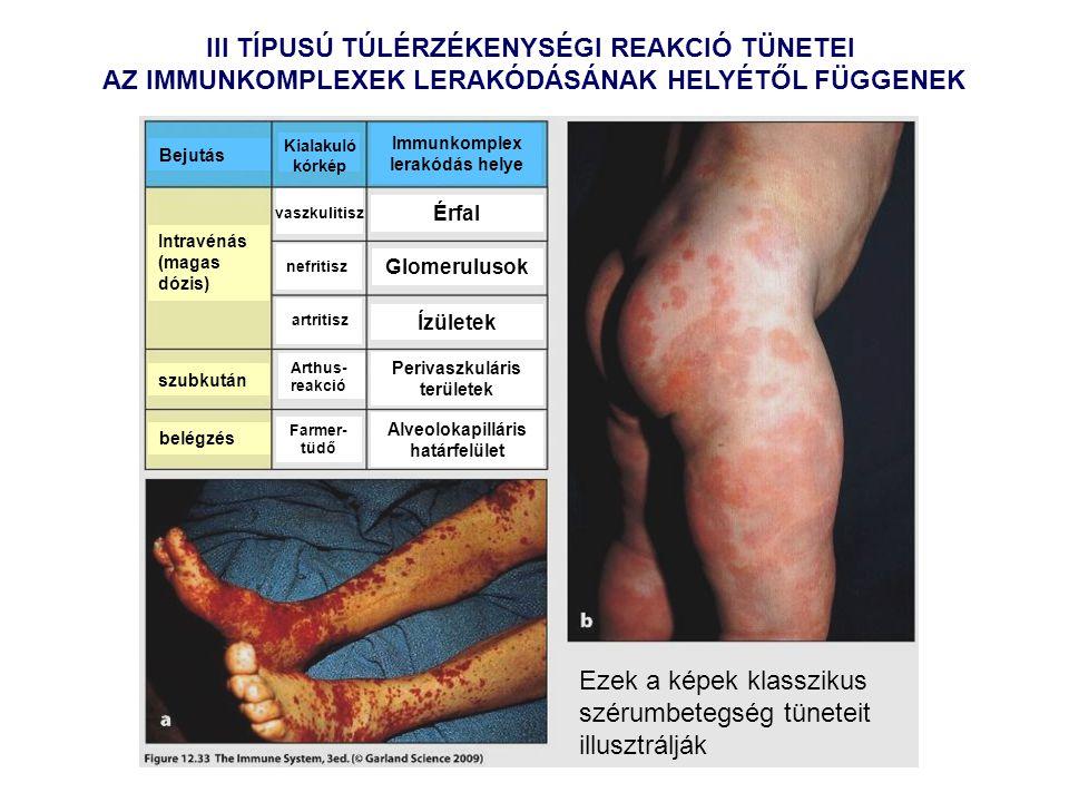 III TÍPUSÚ TÚLÉRZÉKENYSÉGI REAKCIÓ TÜNETEI AZ IMMUNKOMPLEXEK LERAKÓDÁSÁNAK HELYÉTŐL FÜGGENEK Intravénás (magas dózis) szubkután belégzés Bejutás Kialakuló kórkép Immunkomplex lerakódás helye vaszkulitisz nefritisz artritisz Arthus- reakció Farmer- tüdő Érfal Glomerulusok Ízületek Perivaszkuláris területek Alveolokapilláris határfelület Ezek a képek klasszikus szérumbetegség tüneteit illusztrálják