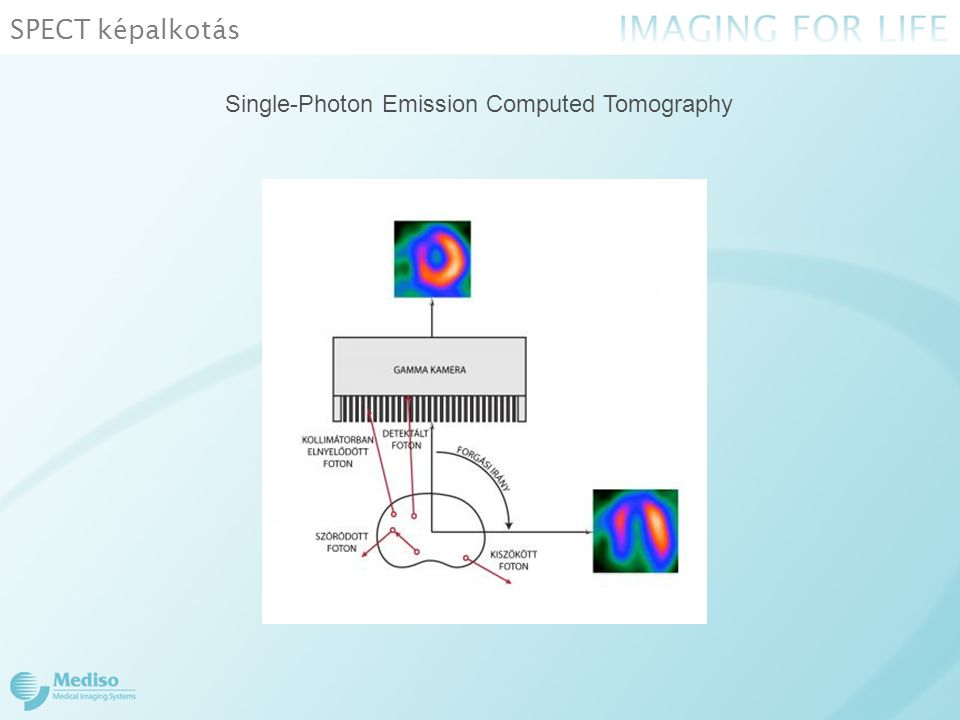 SPECT képalkotás Single-Photon Emission Computed Tomography