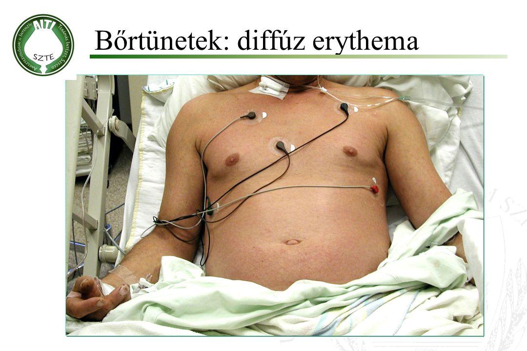 Bőrtünetek: diffúz erythema