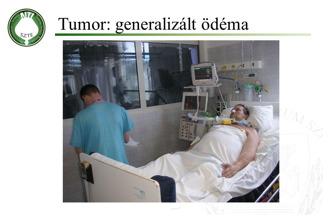 Ohm törvénye: Hemodinamikai változások Súlyos szepszisben, szeptikus sokkban: Vazodilatáció: SVR (MAP) alacsony, CO magas DO 2 /VO 2 arány magas Invazív hemodinamikai monitorozás Artériás + centrális vénás kanül Pulmonális artéria katéter (Swan-Ganz) Artériás termodiúció (PiCCO)
