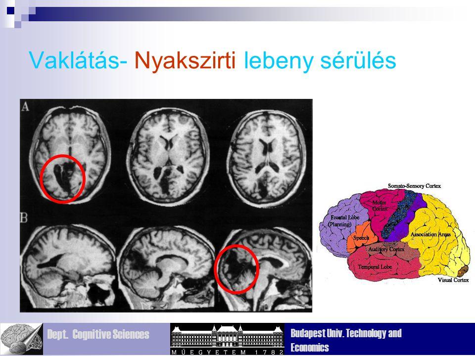 Dept. Cognitive Sciences Budapest Univ. Technology and Economics Vaklátás- Nyakszirti lebeny sérülés