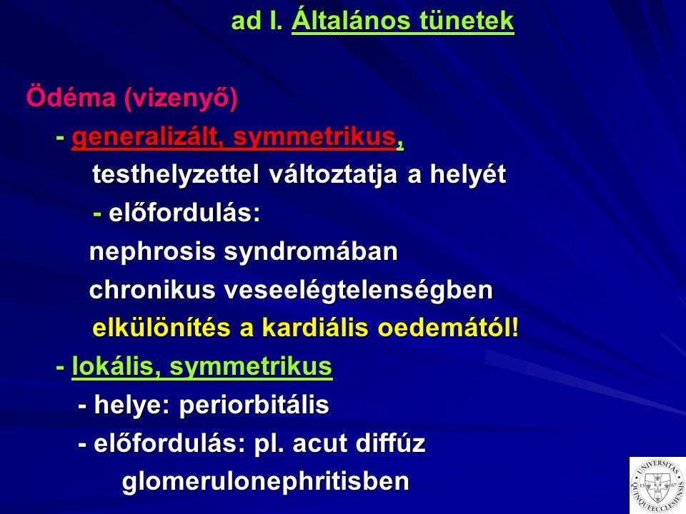 ad I. Általános tünetek Ödéma (vizenyő) - generalizált, symmetrikus, - generalizált, symmetrikus, testhelyzettel változtatja a helyét testhelyzettel v
