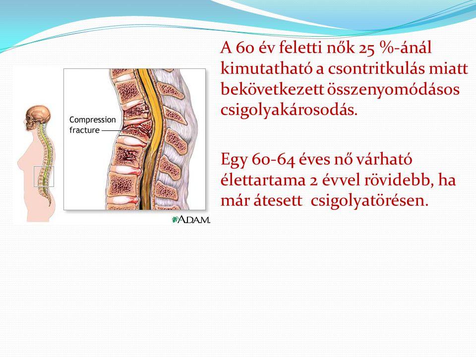 A 60 év feletti nők 25 %-ánál kimutatható a csontritkulás miatt bekövetkezett összenyomódásos csigolyakárosodás. Egy 60-64 éves nő várható élettartama