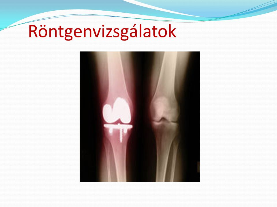 Röntgenvizsgálatok