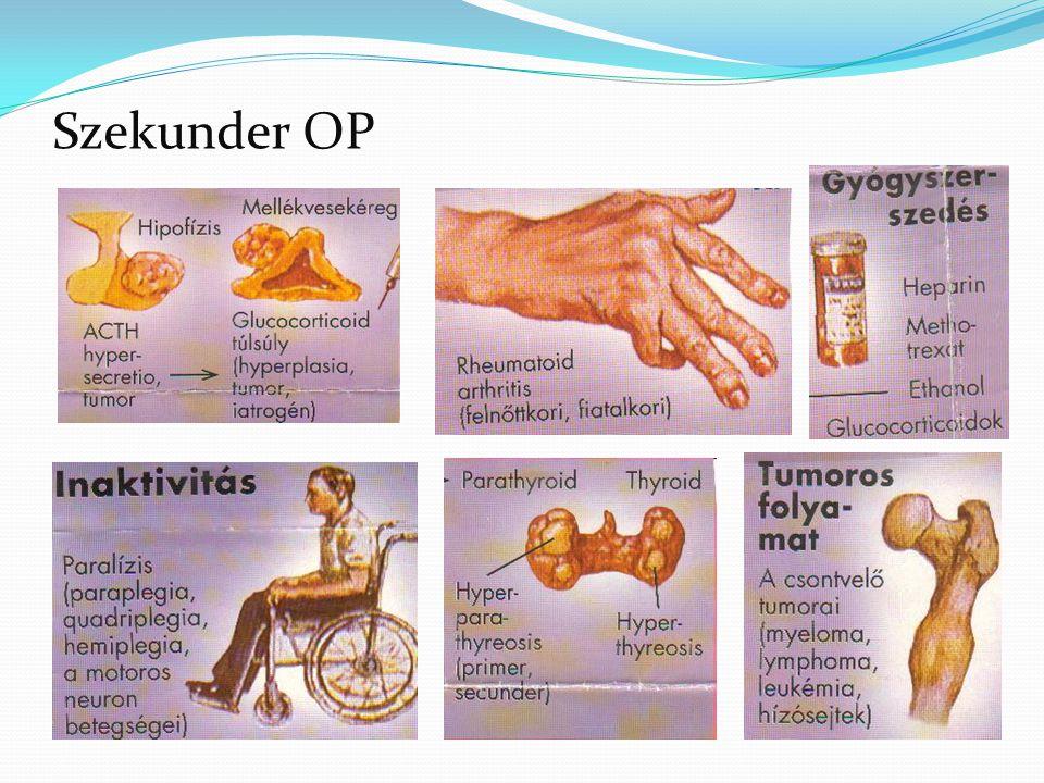 Az osteoporosis rizikófaktorai Nem befolyásolható Befolyásolható nem életkor, Testalkat, méretek családon belül halmozott előfordulás rassz nemi hormonok mennyisége táplálkozási, emésztési, felszívódási zavarok, D-vitamin hiány, alacsony kalcium bevitel Gyógyszerek szteroidok (károsítja a csontokat), vízhajtó (fokozza a kalciumvesztést) kevés testmozgás, ágynyugalom Anorexia, fogyás depresszió (fokozódik a csontvesztés) Dohányzás, túlzott alkohol és koffein bevitel