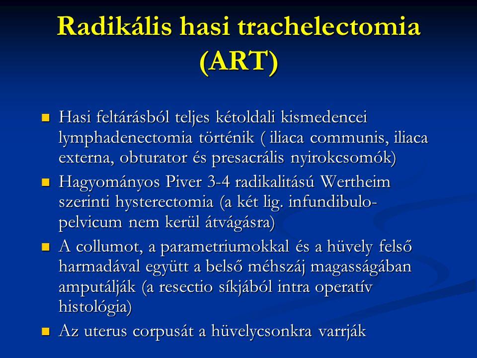 Radikális hasi trachelectomia (ART) Hasi feltárásból teljes kétoldali kismedencei lymphadenectomia történik ( iliaca communis, iliaca externa, obturat