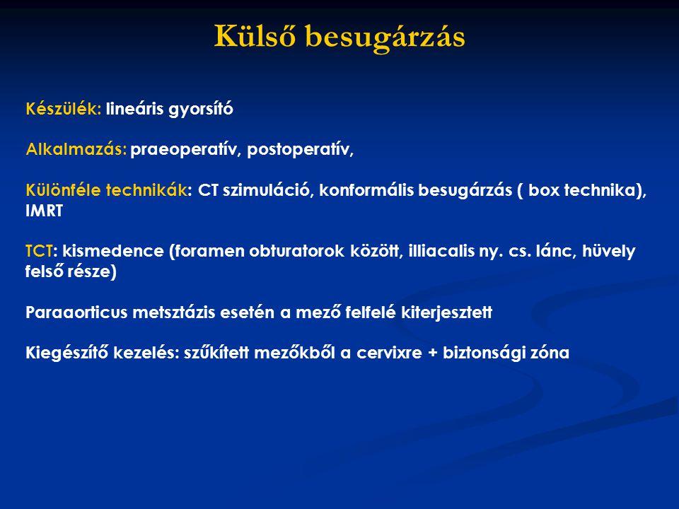 Külső besugárzás Készülék: lineáris gyorsító Alkalmazás: praeoperatív, postoperatív, Különféle technikák: CT szimuláció, konformális besugárzás ( box