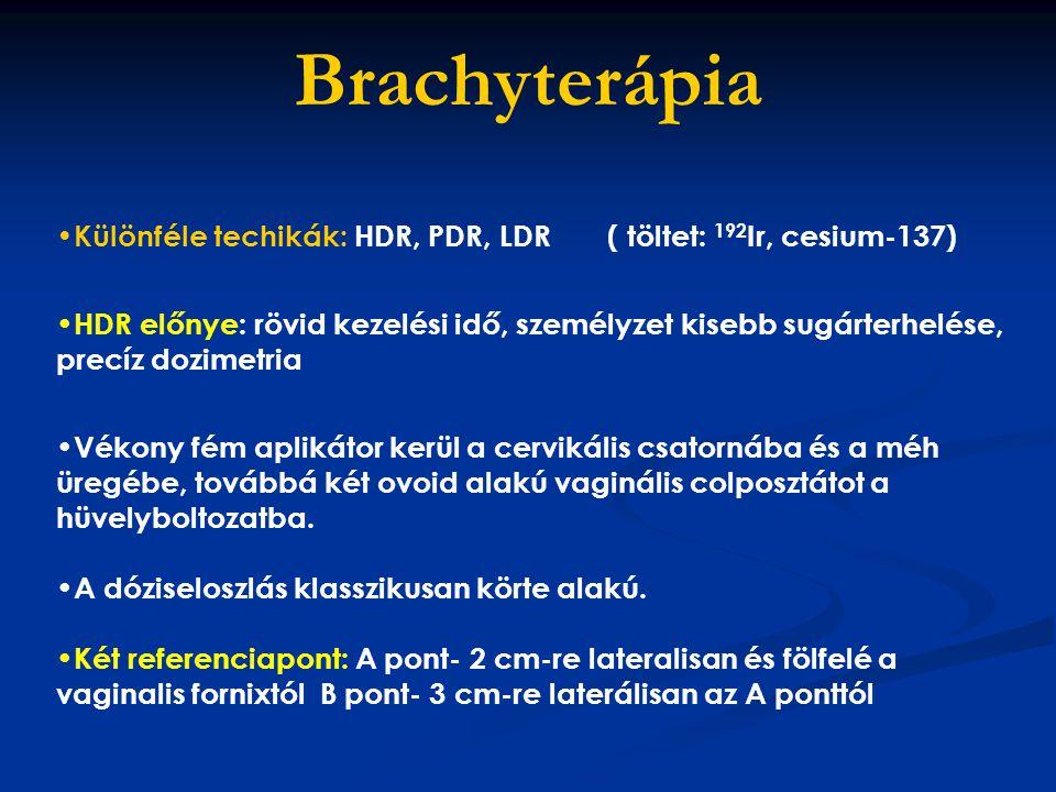 Brachyterápia Különféle techikák: HDR, PDR, LDR ( töltet: 192 Ir, cesium-137) HDR előnye: rövid kezelési idő, személyzet kisebb sugárterhelése, precíz