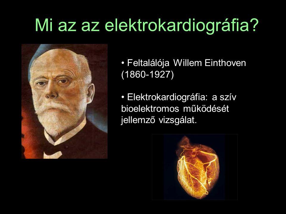 Mi az az elektrokardiográfia? Feltalálója Willem Einthoven (1860-1927) Elektrokardiográfia: a szív bioelektromos működését jellemző vizsgálat.