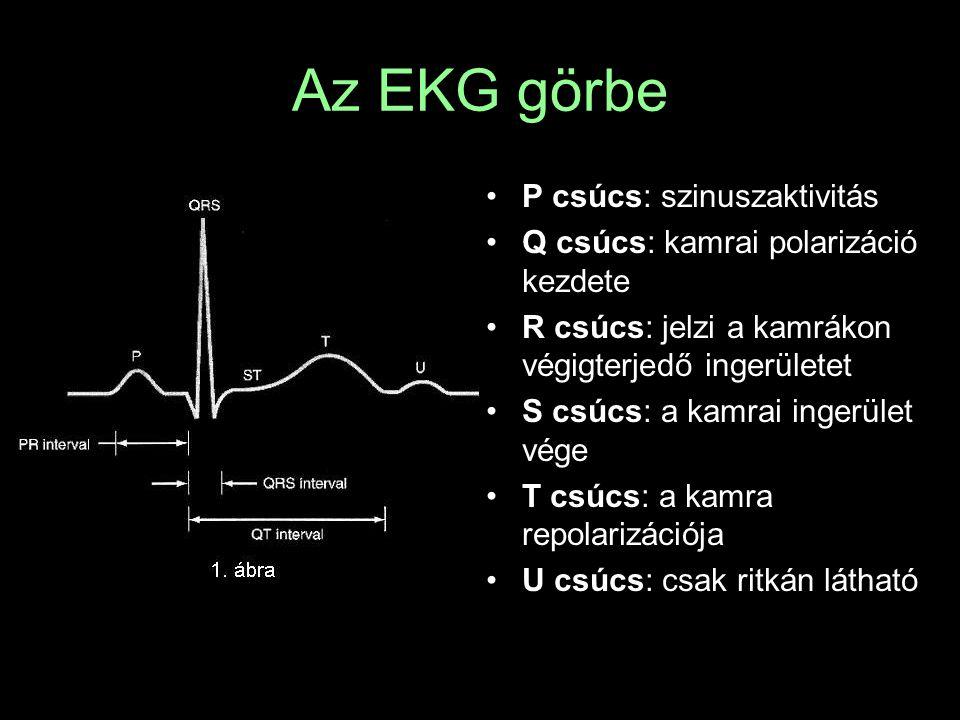 Az EKG görbe P csúcs: szinuszaktivitás Q csúcs: kamrai polarizáció kezdete R csúcs: jelzi a kamrákon végigterjedő ingerületet S csúcs: a kamrai ingerü
