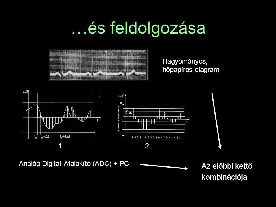 …és feldolgozása Az előbbi kettő kombinációja Hagyományos, hőpapíros diagram Analóg-Digitál Átalakító (ADC) + PC 1.2.
