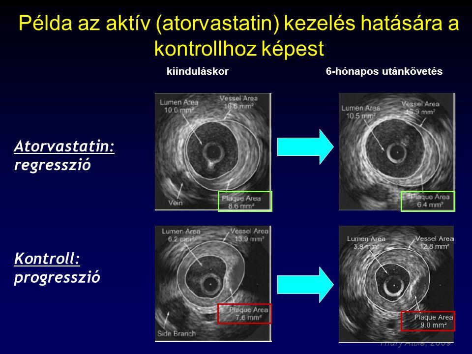 Thury Attila, 2009 Példa az aktív (atorvastatin) kezelés hatására a kontrollhoz képest 6-hónapos utánkövetéskiinduláskor Atorvastatin: regresszió Kontroll: progresszió