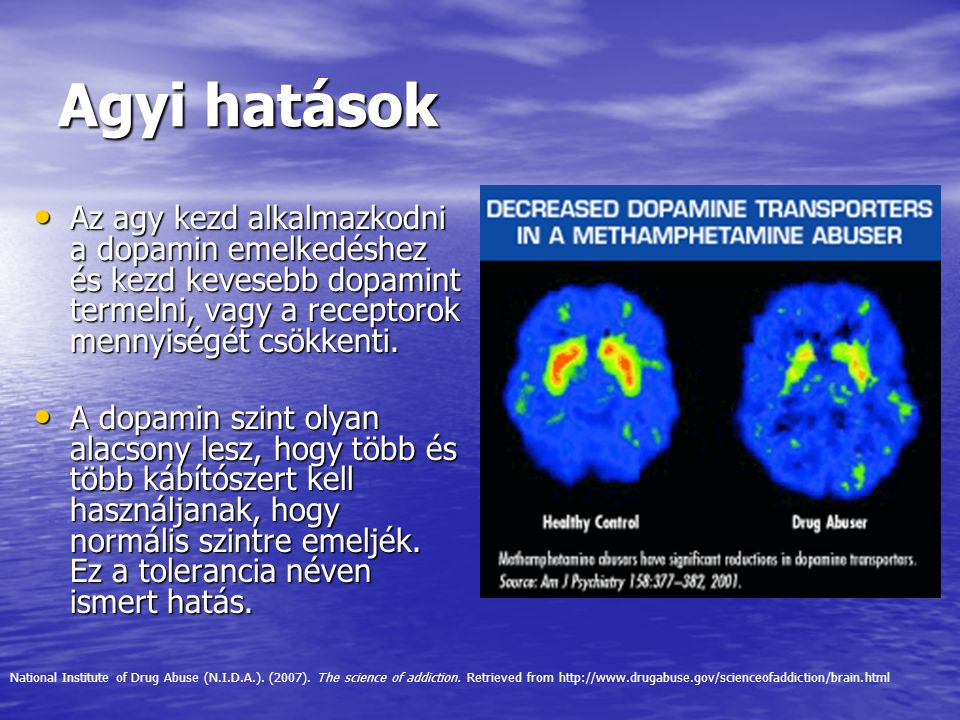 Agyi hatások Az agy kezd alkalmazkodni a dopamin emelkedéshez és kezd kevesebb dopamint termelni, vagy a receptorok mennyiségét csökkenti. Az agy kezd