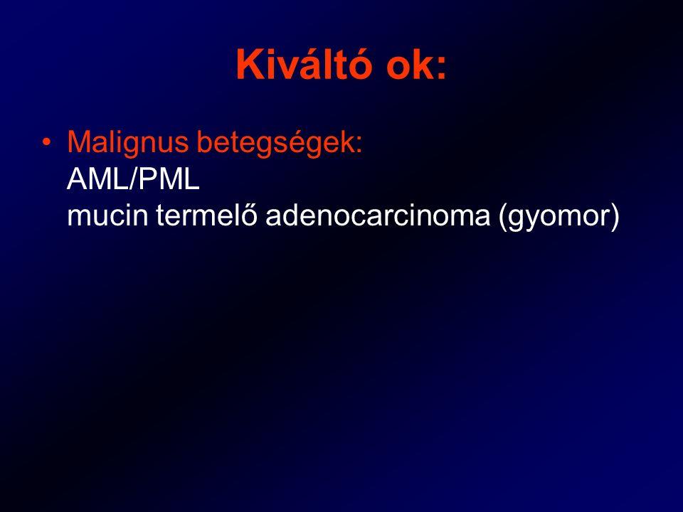 Kiváltó ok: Malignus betegségek: AML/PML mucin termelő adenocarcinoma (gyomor)