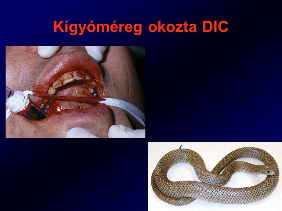 Kígyóméreg okozta DIC