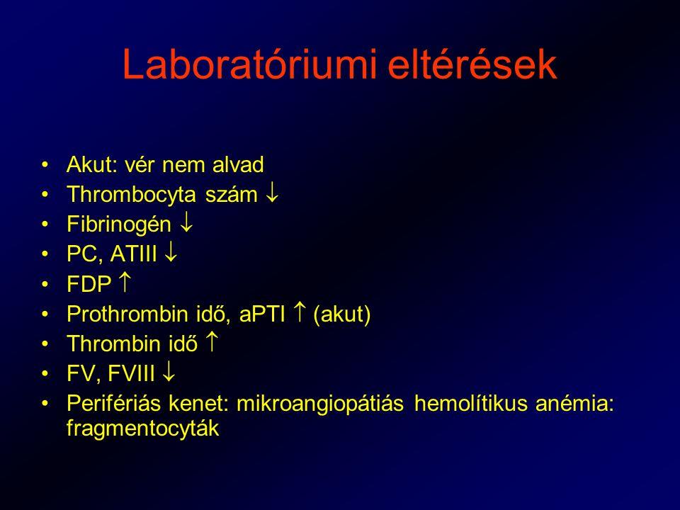 Laboratóriumi eltérések Akut: vér nem alvad Thrombocyta szám  Fibrinogén  PC, ATIII  FDP  Prothrombin idő, aPTI  (akut) Thrombin idő  FV, FVIII