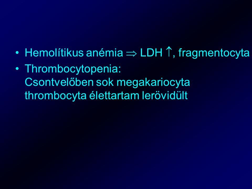 Hemolítikus anémia  LDH , fragmentocyta Thrombocytopenia: Csontvelőben sok megakariocyta thrombocyta élettartam lerövidült