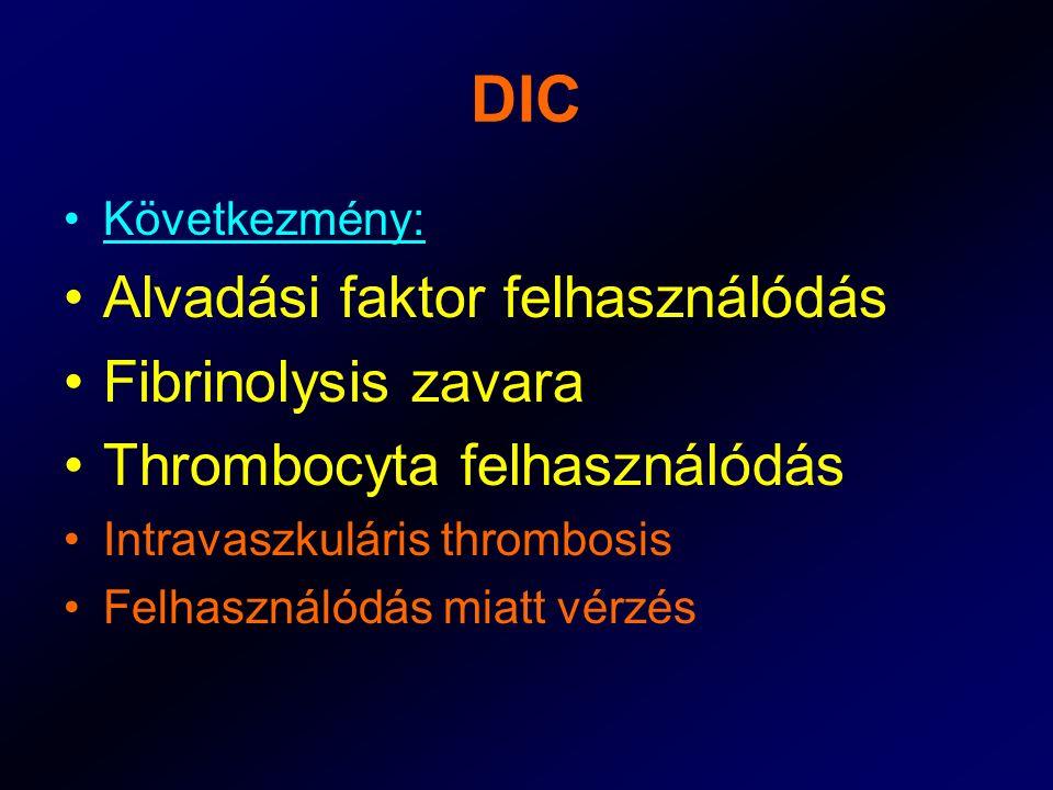 DIC Következmény: Alvadási faktor felhasználódás Fibrinolysis zavara Thrombocyta felhasználódás Intravaszkuláris thrombosis Felhasználódás miatt vérzé