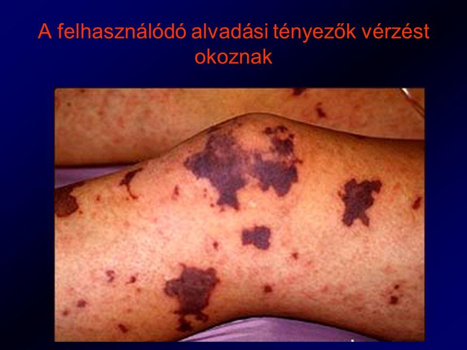 A felhasználódó alvadási tényezők vérzést okoznak