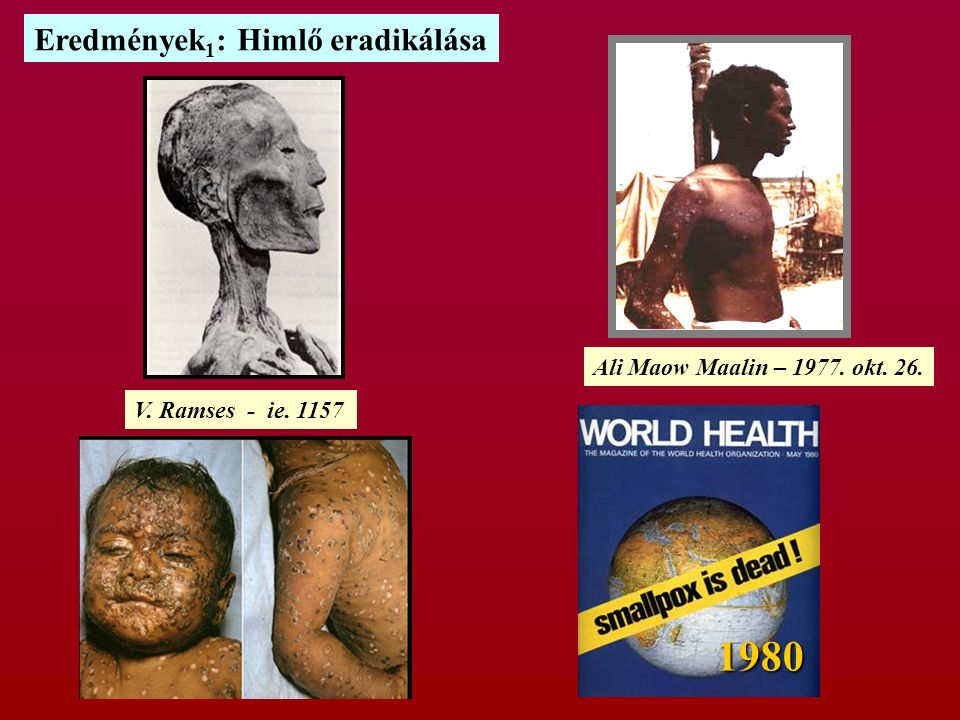 1980 Eredmények 1 : Himlő eradikálása V. Ramses - ie. 1157 Ali Maow Maalin – 1977. okt. 26.