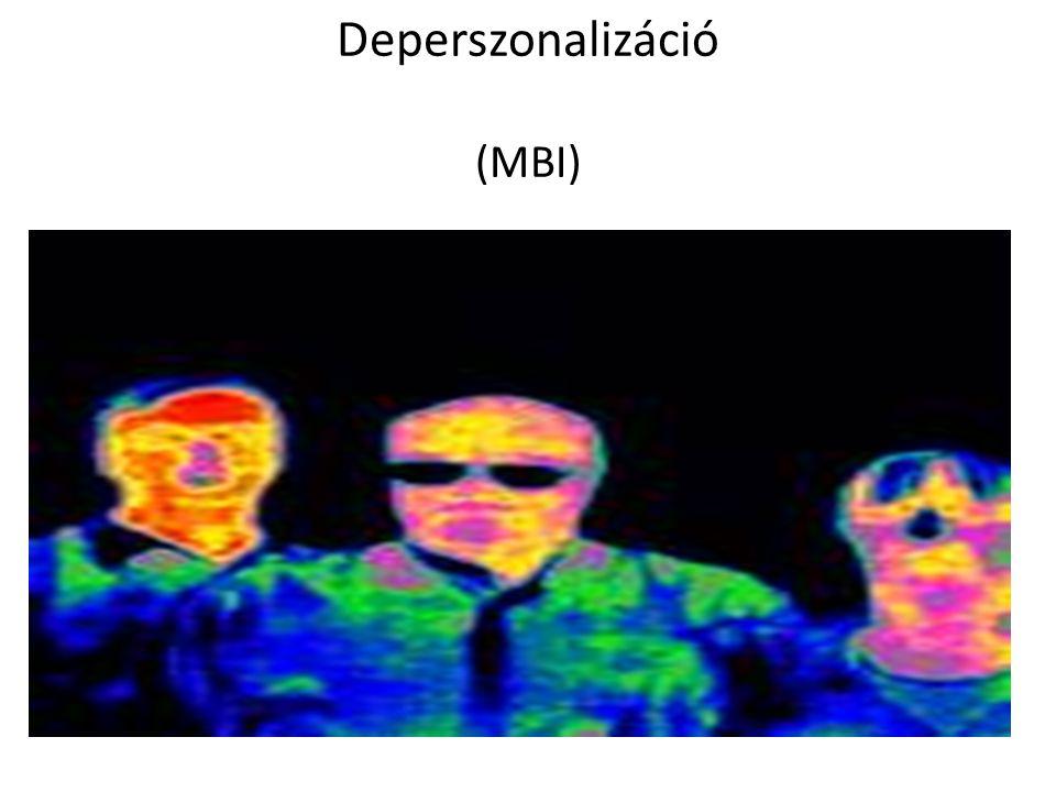 Deperszonalizáció (MBI)