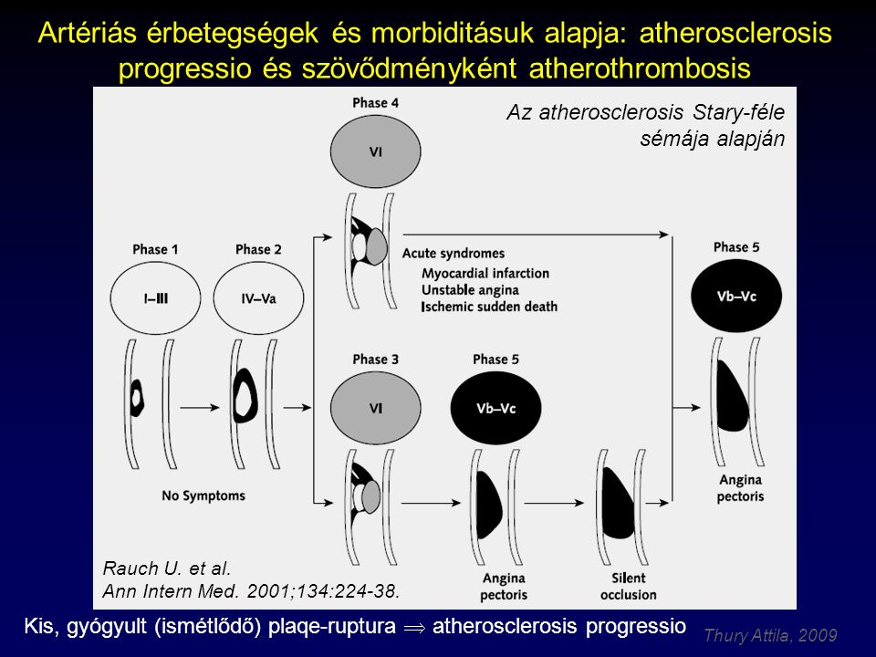 Thury Attila, 2009 Artériás érbetegségek és morbiditásuk alapja: atherosclerosis progressio és szövődményként atherothrombosis Kis, gyógyult (ismétlőd