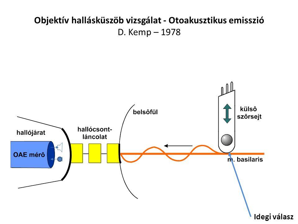 Objektív hallásküszöb vizsgálat - Otoakusztikus emisszió D. Kemp – 1978 Idegi válasz