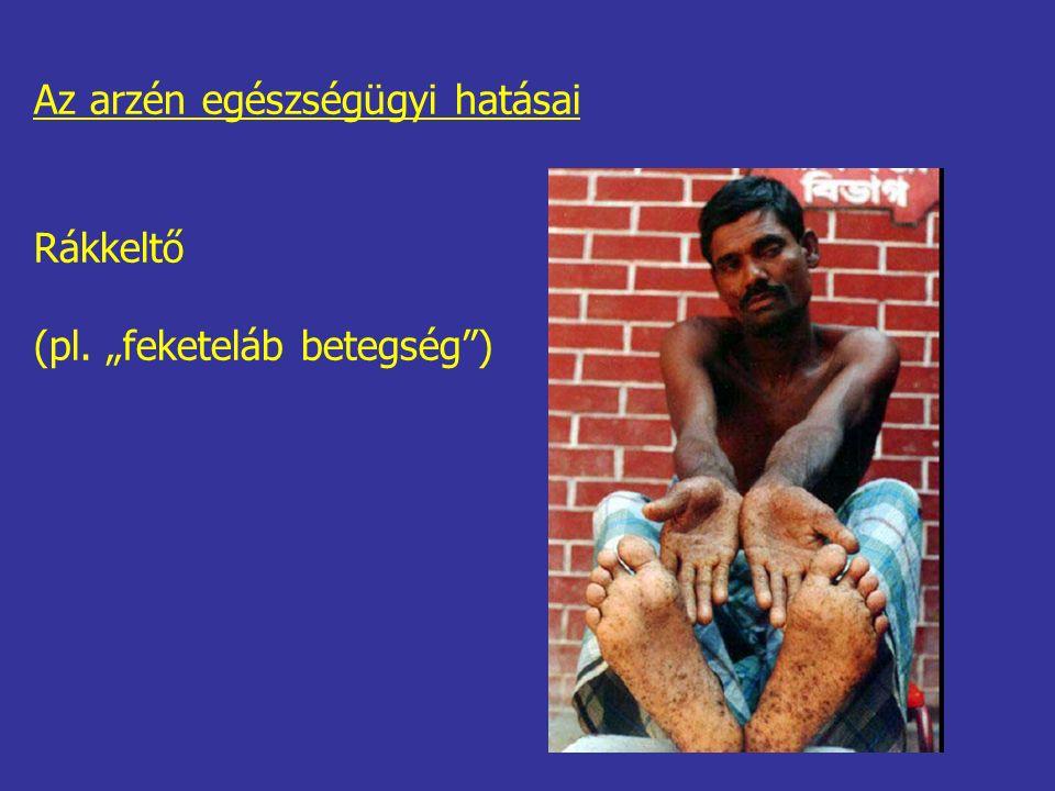 """Az arzén egészségügyi hatásai Rákkeltő (pl. """"feketeláb betegség )"""