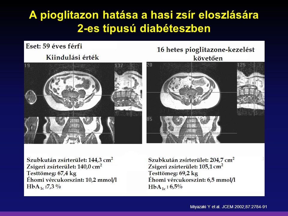 A pioglitazon hatása a hasi zsír eloszlására 2-es típusú diabéteszben Miyazaki Y et al. JCEM 2002;87:2784-91