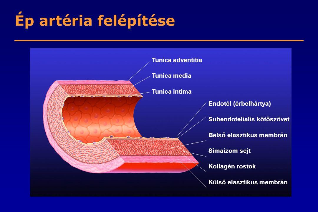 Az atherosclerosis kialakulása Hab-sejtekKorailézióKözepeslézió Atheroma Fibrózus plakk Komplikált lézió/ruptúra Endotél diszfunkció Simaizom és kollagén Születés 20 évtől kezdődően 30 év felett A növekedés elsősorban lipid akkumulációval Thrombosis, hematoma Stary HC et al.