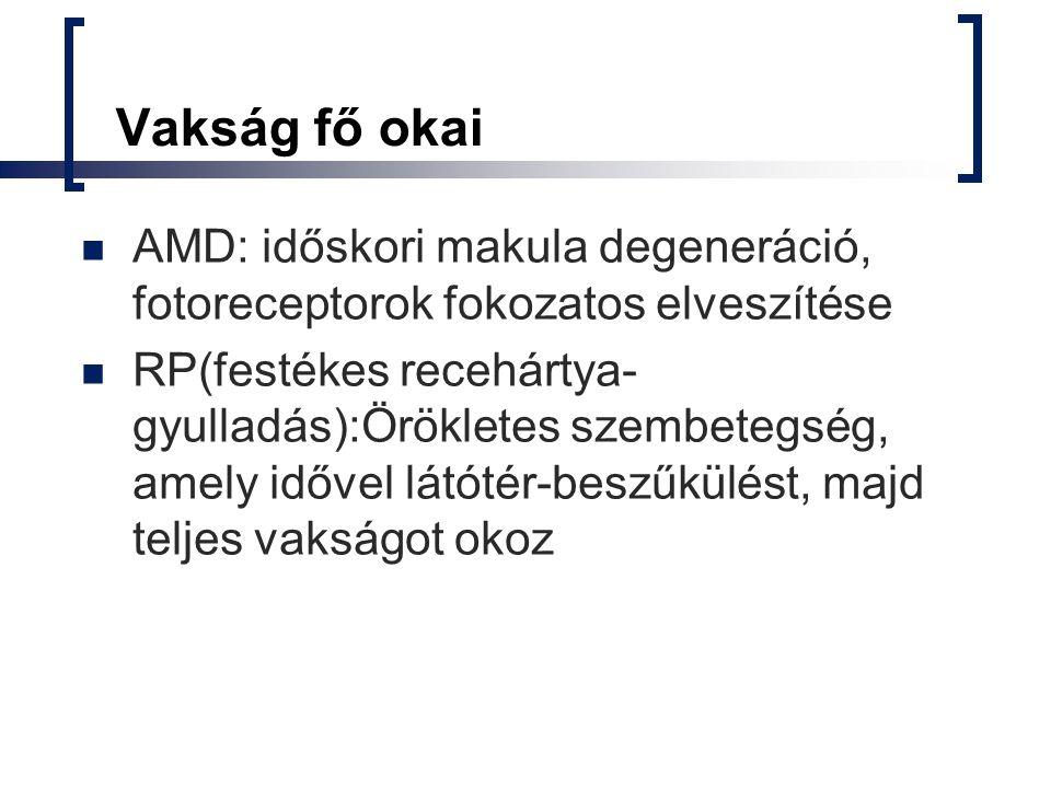 Vakság fő okai AMD: időskori makula degeneráció, fotoreceptorok fokozatos elveszítése RP(festékes recehártya- gyulladás):Örökletes szembetegség, amely