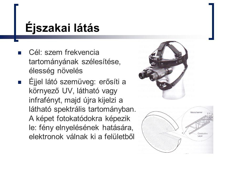 Roska Tamás - Bionikus szem Cellák fotoszenzort tartalmaznak Másodpercenként több 1000 kép készítése és azonnali műveletek elvégzése Bionikus fül kifejlesztése is hasonló