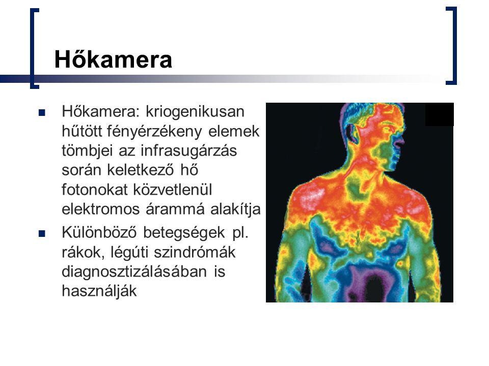 Hőkamera Hőkamera: kriogenikusan hűtött fényérzékeny elemek tömbjei az infrasugárzás során keletkező hő fotonokat közvetlenül elektromos árammá alakít