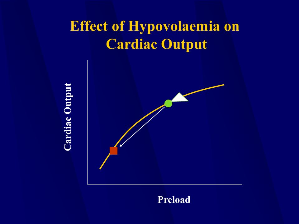 Preload Cardiac Output Effect of Hypovolaemia on Cardiac Output
