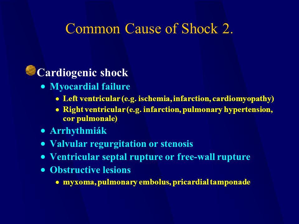 Common Cause of Shock 2. Cardiogenic shock  Myocardial failure  Left ventricular (e.g. ischemia, infarction, cardiomyopathy)  Right ventricular (e.