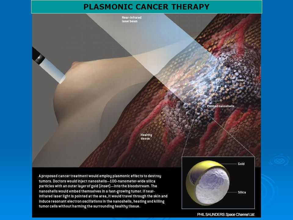 PLASMONIC CANCER THERAPY