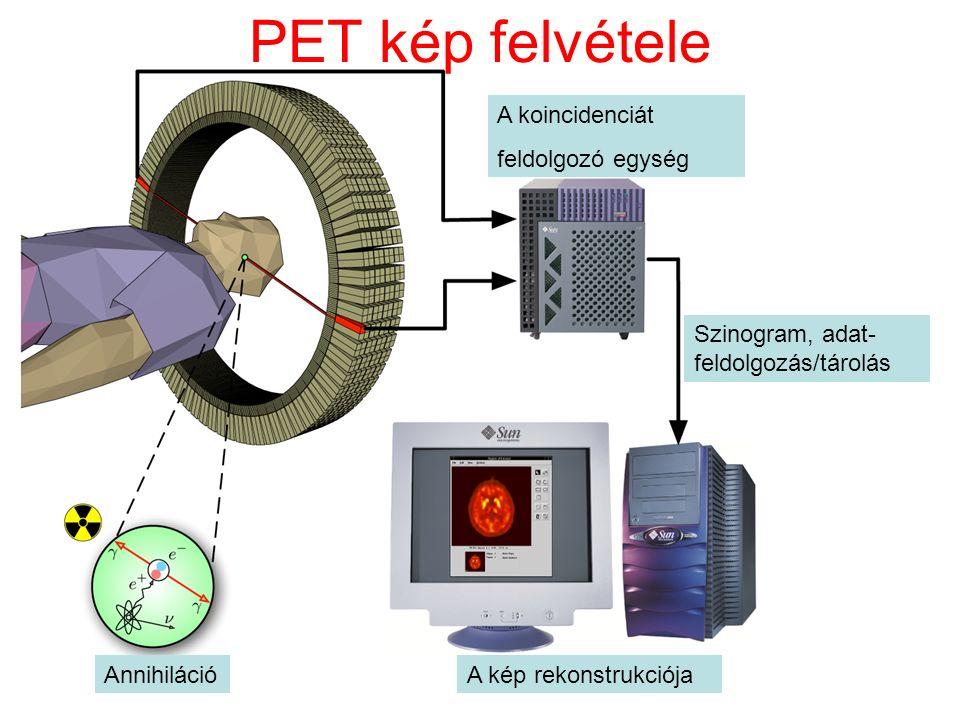 PET kép felvétele A koincidenciát feldolgozó egység AnnihilációA kép rekonstrukciója Szinogram, adat- feldolgozás/tárolás