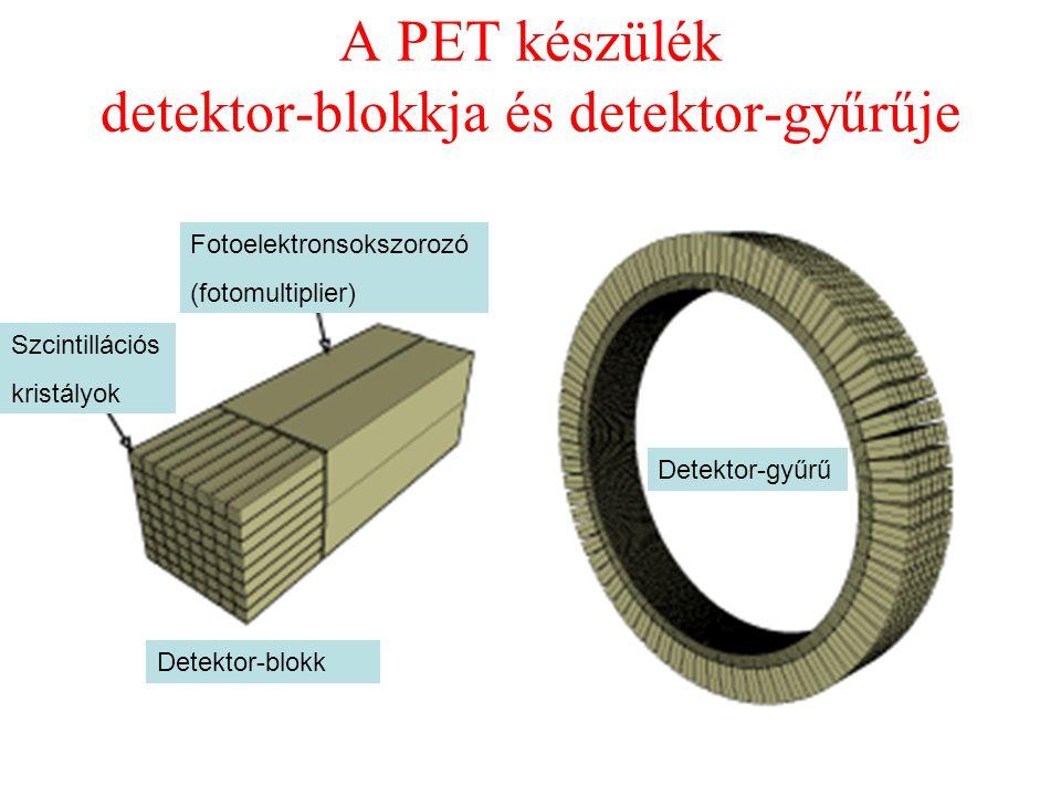 A PET készülék detektor-blokkja és detektor-gyűrűje Detektor-blokk Detektor-gyűrű Fotoelektronsokszorozó (fotomultiplier) Szcintillációs kristályok