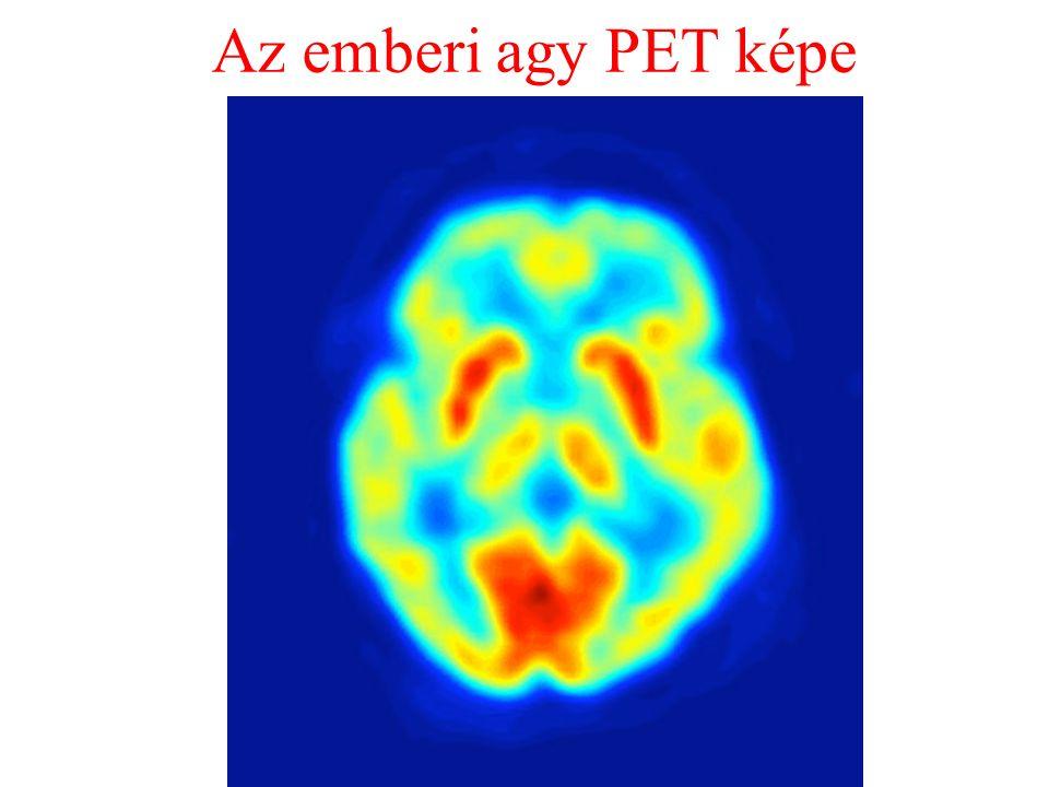 Az emberi agy PET képe