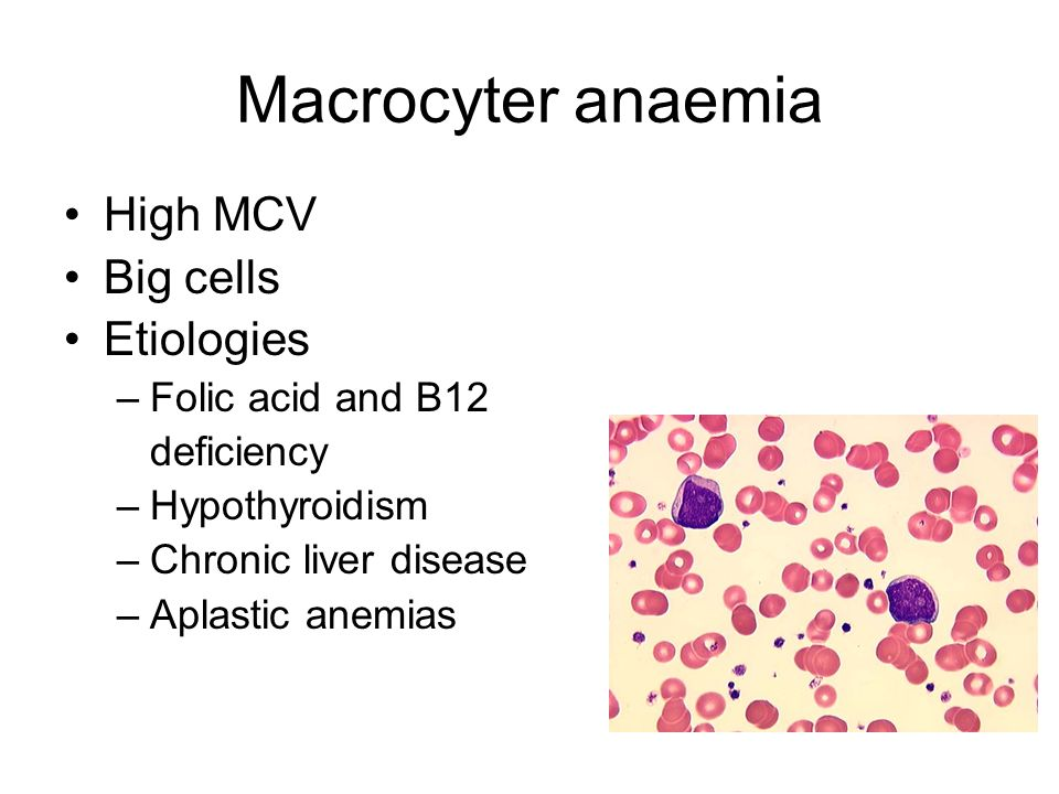 Macrocyter anaemia High MCV Big cells Etiologies –Folic acid and B12 deficiency –Hypothyroidism –Chronic liver disease –Aplastic anemias