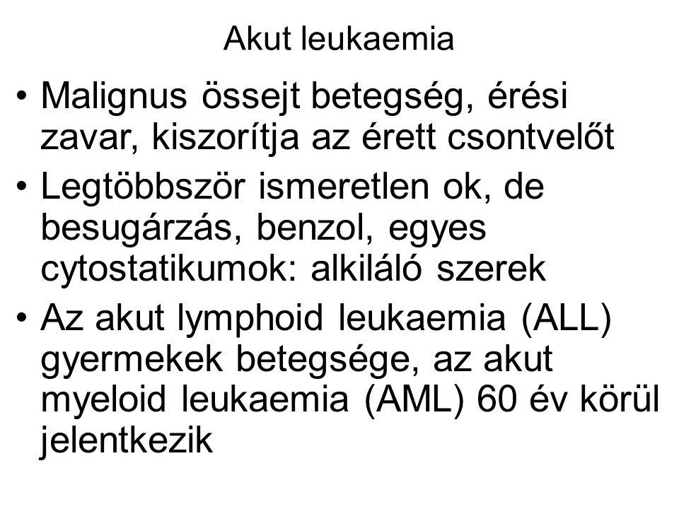 Akut leukaemia Malignus össejt betegség, érési zavar, kiszorítja az érett csontvelőt Legtöbbször ismeretlen ok, de besugárzás, benzol, egyes cytostati