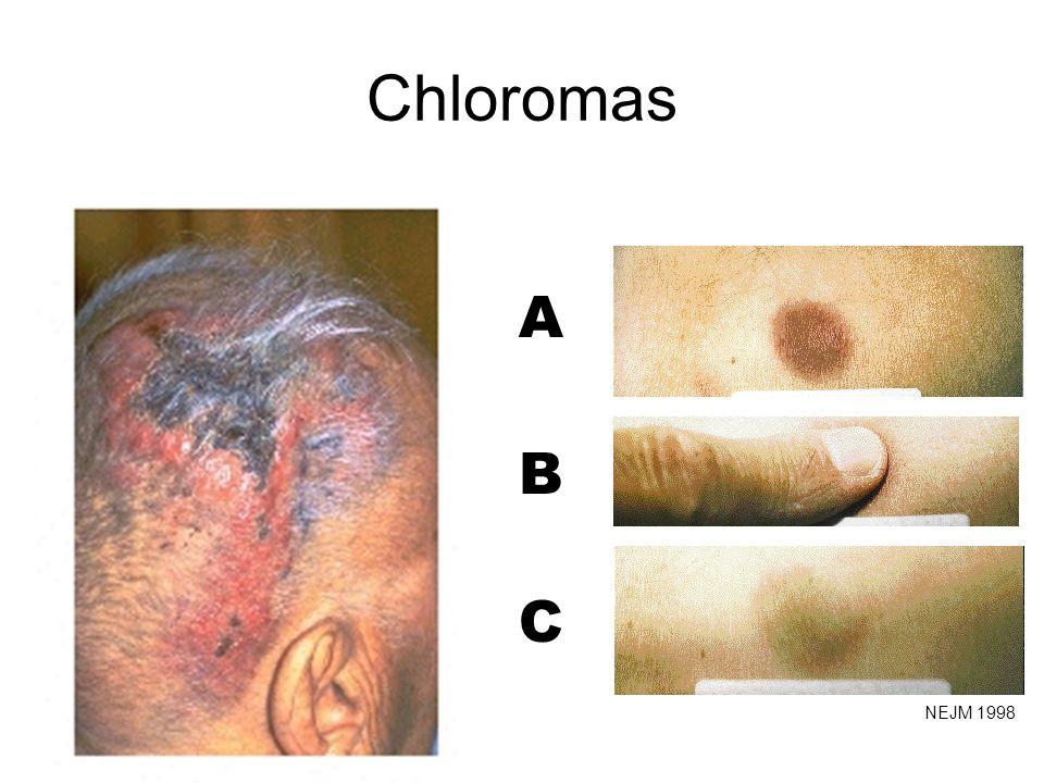 A B C Chloromas NEJM 1998