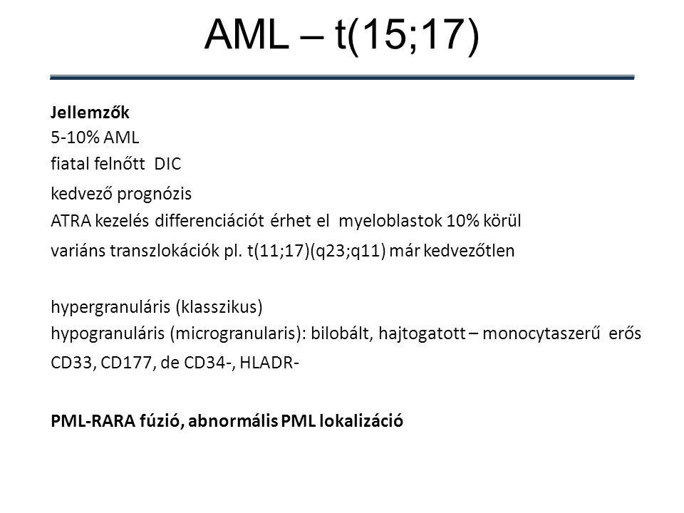 AML – t(15;17) Jellemzők 5-10% AML fiatal felnőtt DIC kedvező prognózis ATRA kezelés differenciációt érhet el myeloblastok 10% körül variáns transzlokációk pl.