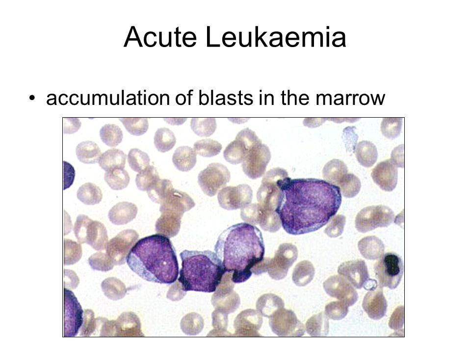 Pathophysiology of the Acute Leukaemias Acute leukaemia causes morbidity & mortality through three general mechanisms: Deficiency in normal blood cell number or function Invasion of vital organs with impairment of organ function Systemic disturbances shown by metabolic imbalance